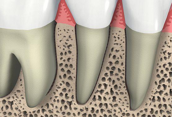 Knochenersatz im Kieferknochen und Zahnimplantate Dortmund