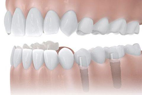 Bei Schaltlücken kommen ebenfalls Zahnimplantate aus Dortmund zum tragen