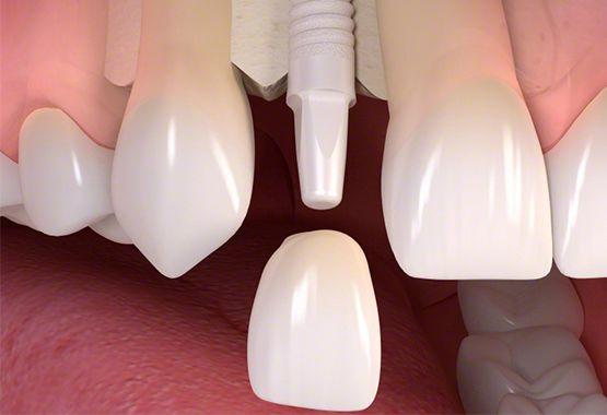 Darstellung eines Implantats als 3D Rendering sowie Zahnimplantate Dortmund