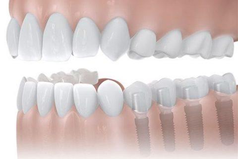 Auch eine Verkürzte Zahnreihe lässt sich durch Zahnimplantate Dortmund optimal versorgen