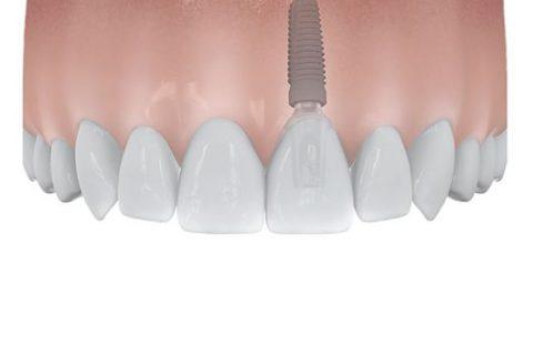 Schließen der Einzelzahnlücke durch Zahnimplantate in Dortmund