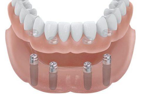 Ihr Zahnarzt für Zahnimplantate in Dortmund lässt Ihren zahnlosen Kiefer mit Zahnersatz wiederherstellen